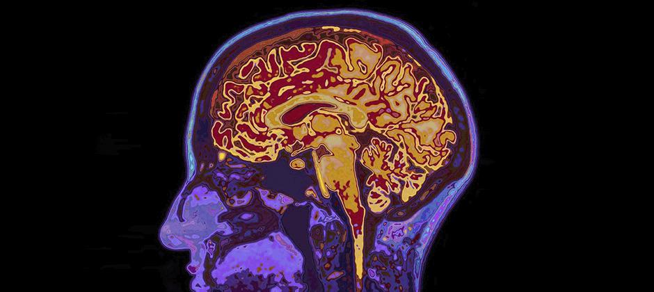 Global Health and Mental Health MSc image